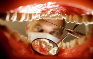 zabolevaniya-zubov