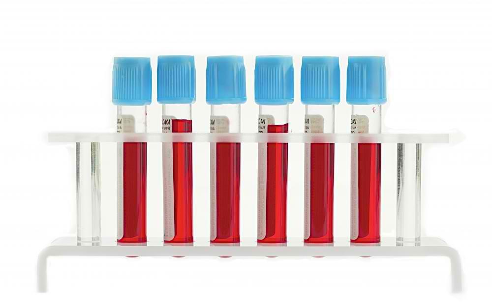 blood-test