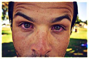 Как лечить глаукому с помощью косяка