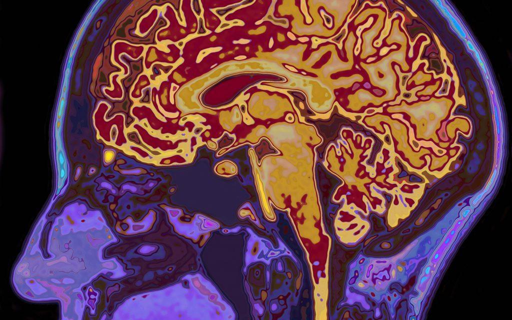 stress-travma-mozg-kannabis
