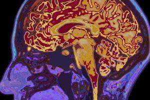 Конопля защищает ваш мозг! Как именно?